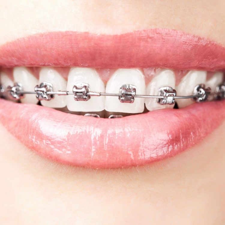 patient smiling with traditional braces on