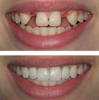 before and after comparison of a patient's dental implants procedure