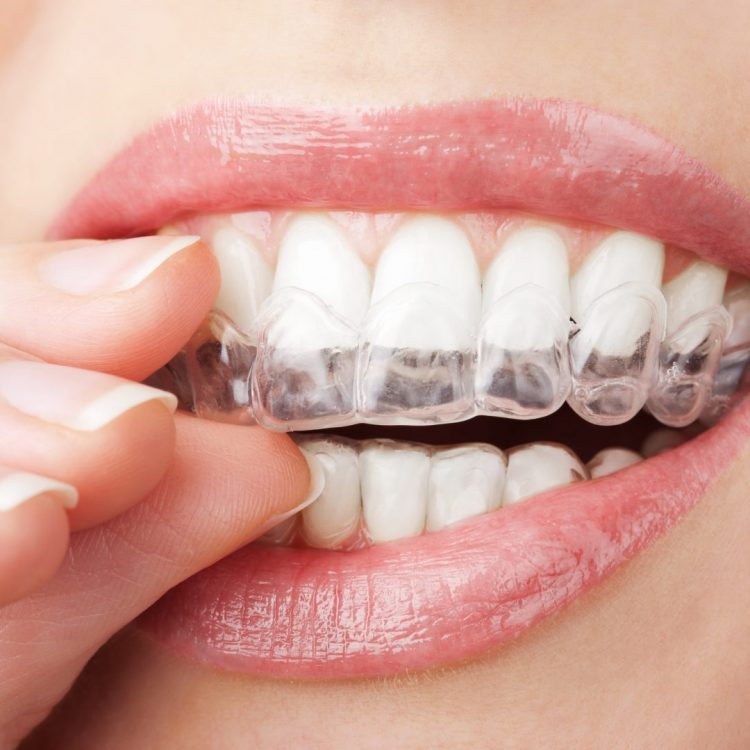 person opening their teeth to put on invisalign invisible braces