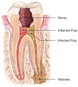 graphic illustration of root canal on an affected tooth