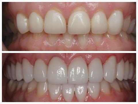 before and after compairson of a patient's veneers