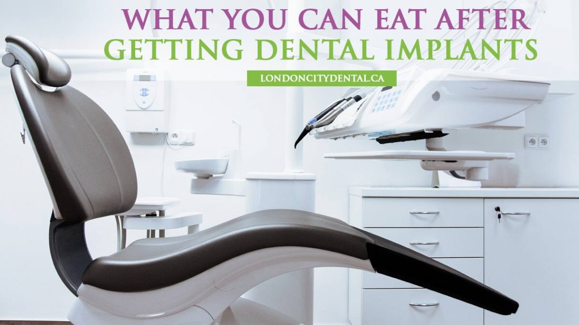 What-You-Can-Eat-After-Getting-Dental-Implants