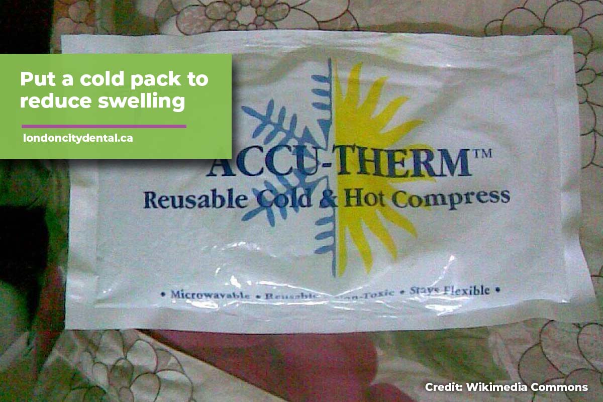 cold pack to reduce swelling