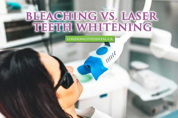 Bleaching vs. Laser Teeth Whitening