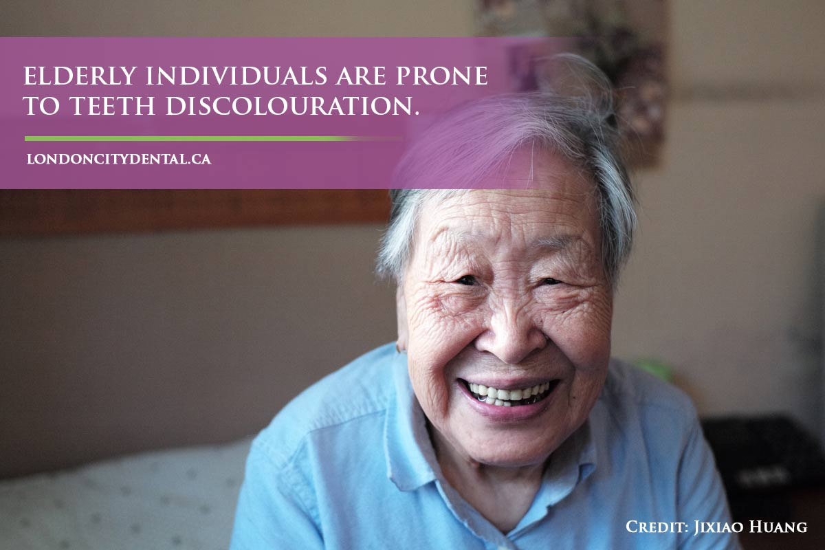 Elderly individuals are prone to teeth discolouration