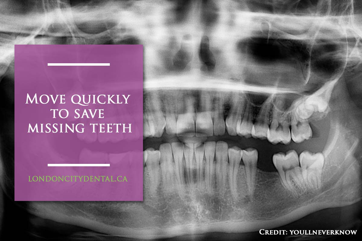 Move quickly to save missing teeth