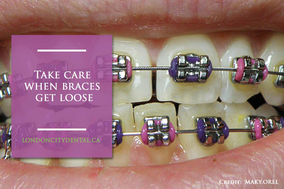 Take care when braces get loose