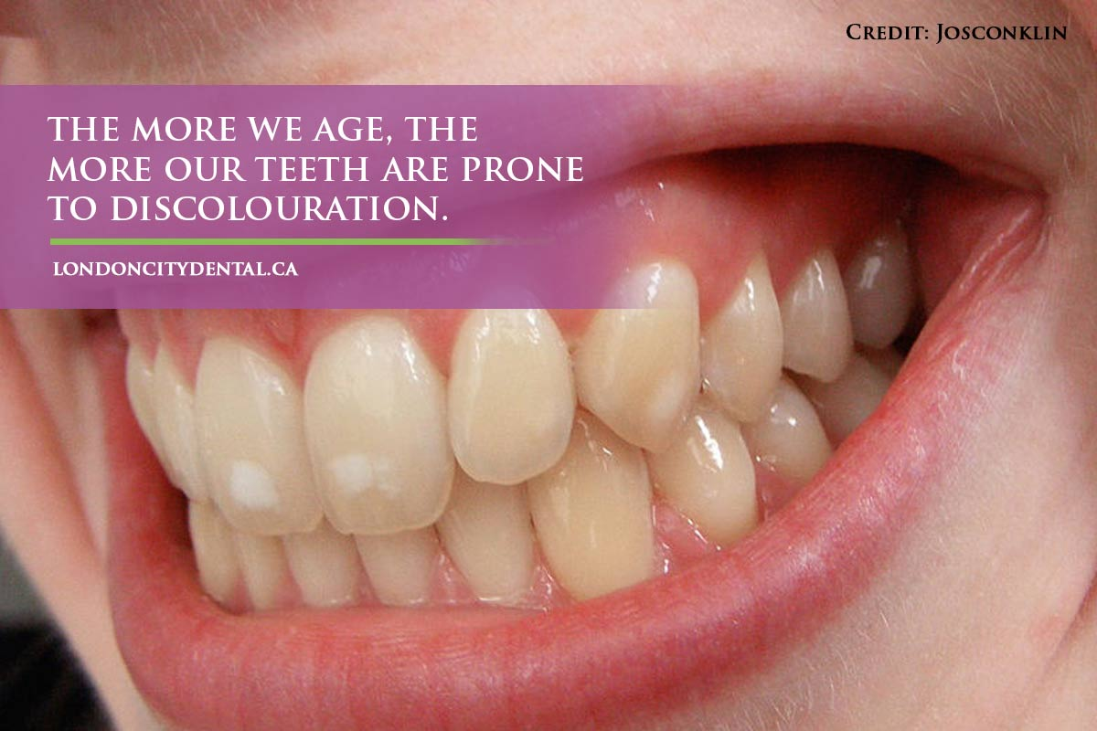 more we age, the more our teeth are prone to discolouration.