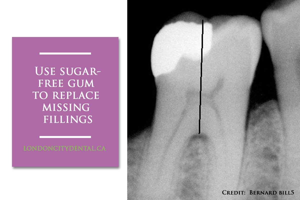 sugar-free gum to replace missing fillings
